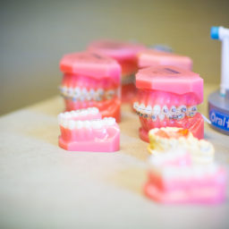 Advance-Orthodontics-General-Shots-18-of-76-256x256 What are Damon Clear Ceramic Braces? - Columbia, Missouri  Braces in Columbia, Missouri - Advance Orthodontics, Columbia Missouri Braces