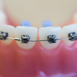 advance-orthodontics-braces-1-12-256x256 What are Insignia Braces - Columbia, Missouri