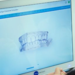Advance-Orthodontics-Columbia-MO-Orthodontic-iTero-Technology-5-256x256 iTero 3D Digital Scanner - Columbia, Missouri  Braces in Columbia, Missouri - Advance Orthodontics, Columbia Missouri Braces